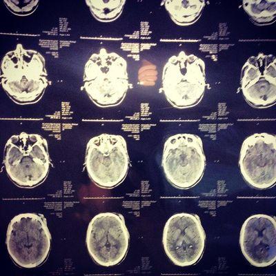 My Brains  Xray Mri Lostandfound