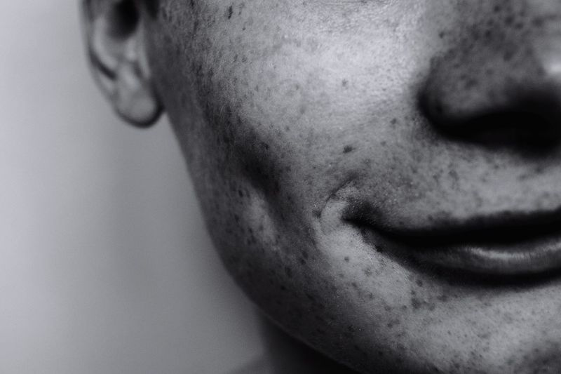 Close-up of person with freckles
