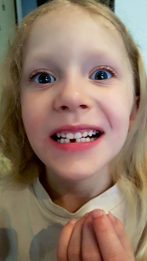 Milk Tooth Girl Teeth Nose Lips Eye Face Faces Of EyeEm Child Childhood Children Photography