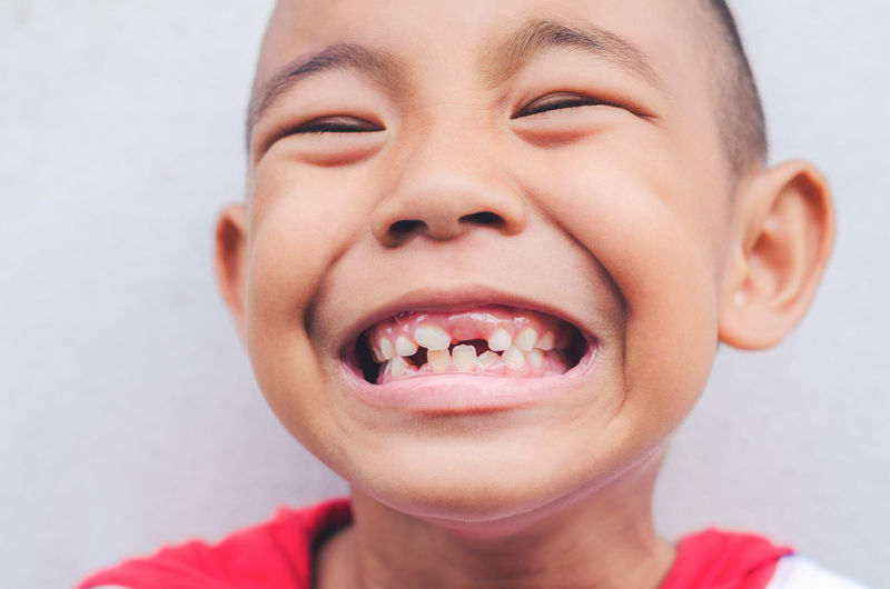 boy with smile and open mouth showing teeth Funny Happiness Happy Hygiene Joke Jovial Positive Boys Caries Cheeky Cheerful Child Childhood Crazy Cute Decayed Tooth Emotion Express Good Innocence Joy Laugh Pupil Smile Tooth