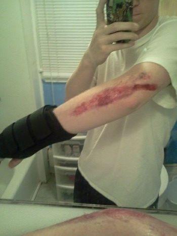 Longboarding Painful Broken Bones HangLoose