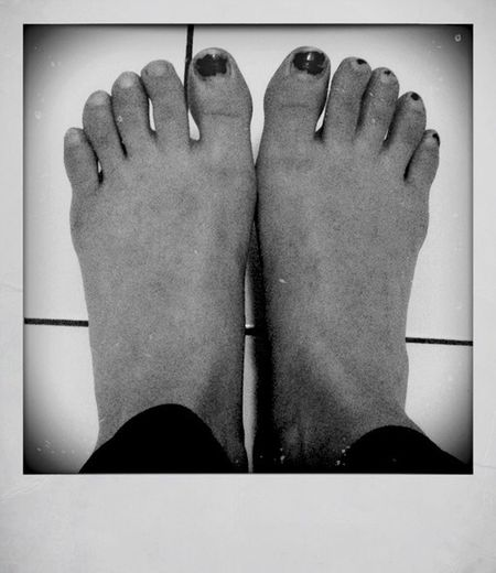 My Ugly Toes