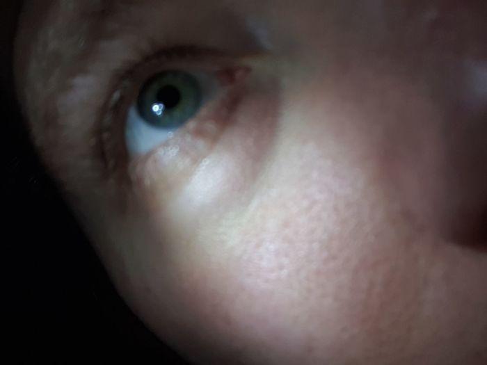 Eyeball Human