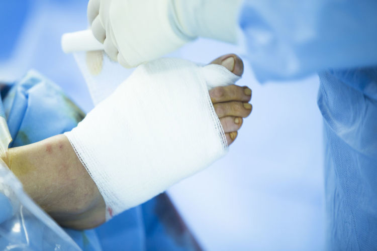 Cropped image of surgeon wrapping bandage on patient wounded foot