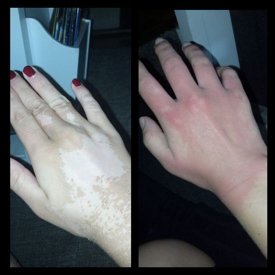 Right: Last sunday | Left: Today...I'm just so fascinated how my hand gets better! Thank you to myself! And all my cells! Hand #JustMe Being Silly Nocomment