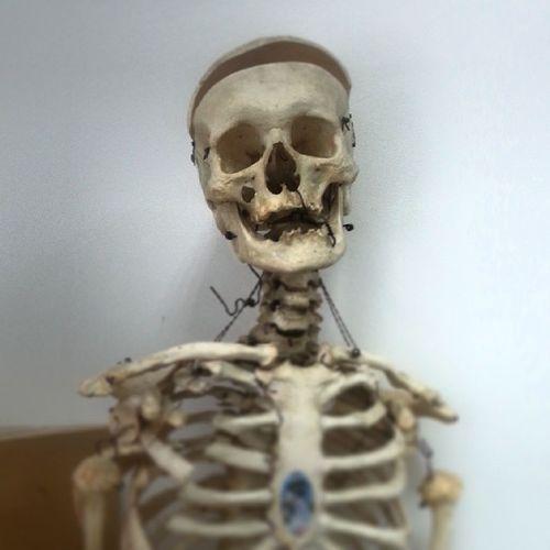 Мой друг, Тиабалду скелет череп къумщхьэ