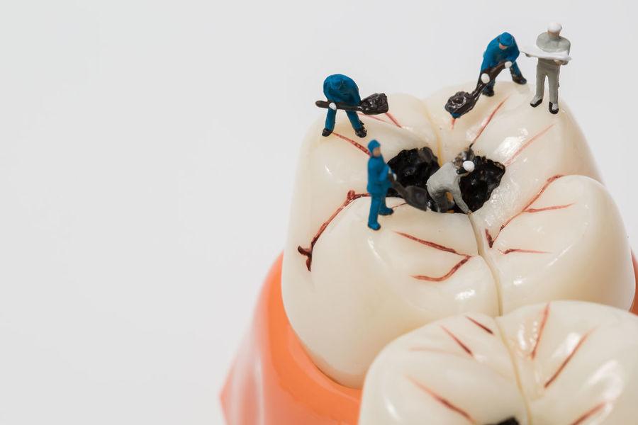 Caries Close-up Dentist Doctor  Gum Headwear Healthcare Hygiene Miniature Studio Shot Team Work Teeth Model White Background