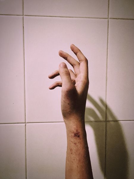 Human Hand Pain Scar One Person Adult Indoors  Darkness Healing Blood Life Depressed Sad Alone