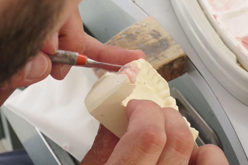 Cropped image of dentist making dentures