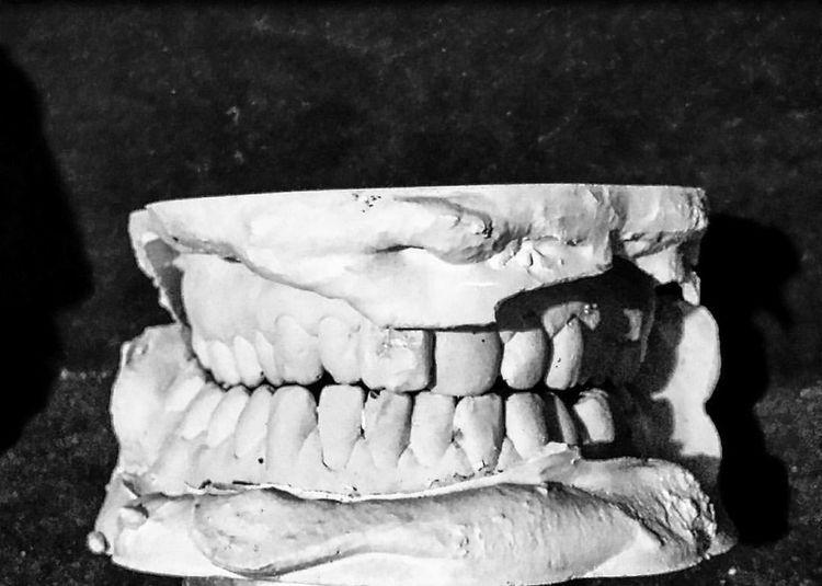Teeth Blackandwhite Myteeth