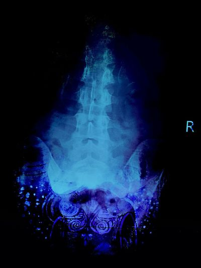 X-Ray X-ray Image X-tay Of Spine Healing Broken Abused Abuse Art Blue Abuse Aftermath Pain Recovery Inguries Spinal Injury San Francisco No People Beauty In Pain How Far I've Come That's Me Pelvic Hips Bones Vertebrae