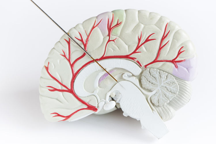 Concept of brain wave recording in Parkinson disease surgery. Microelectrode recording in midbrain. Brain model on white background. Alzheimer Anatomy Background Brain Brain Stem Brain Stimulation Care Cerebral Concept Cure Deep Dementia Diagnosis Disease Disorder Doctor  Dopamine Elderly Equipment HEAD Health Healthcare Human Illness Medical Medicine Mental Microelectrode Model Needle Nervous Neurological Neurology Neurosurgeon Neurosurgery Old Operation Parkinson Patient Recording Research Sick Subthalamic Nucleus Surgery Symbol System Therapy Tools Treatment Waves