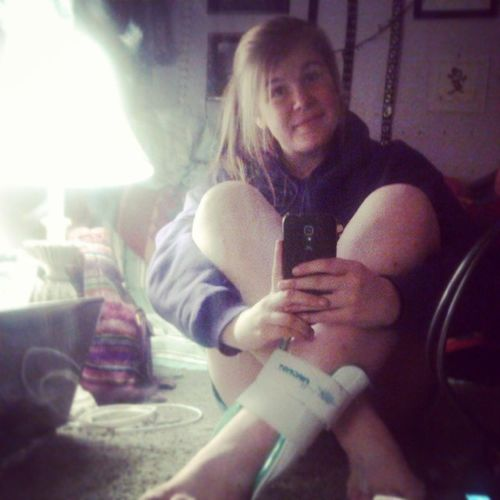 Me, myself, and my cast(; RightAnkle Gay HopeHealsRight Ughhhhh (;