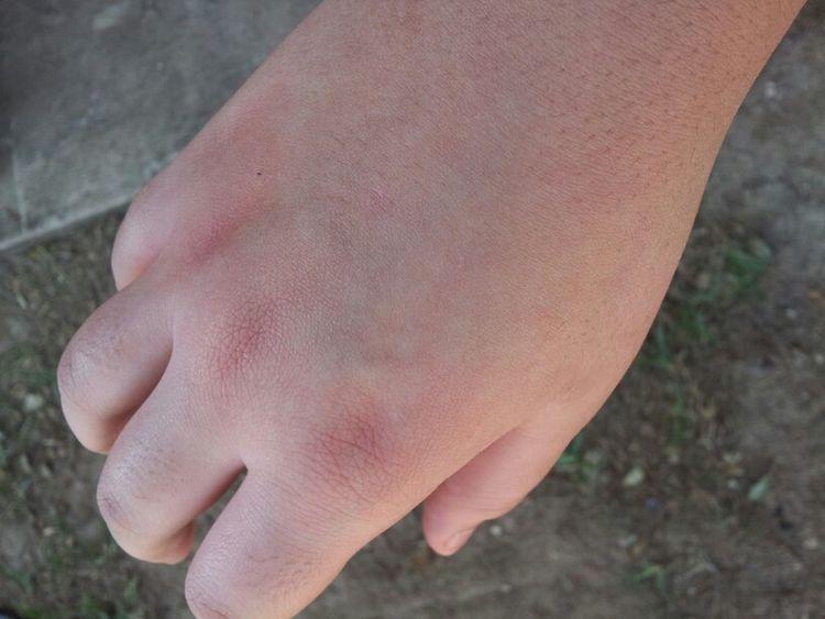 Poor Hand