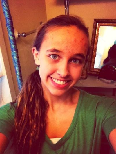 The Braces Are OFF!:)
