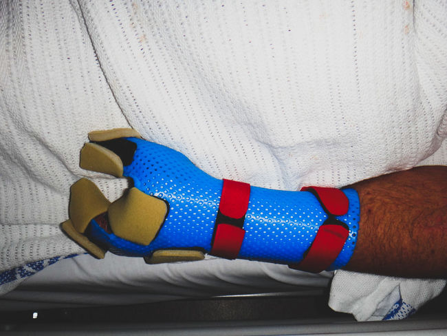 close up of human hand in recovery post trauma and amputation of fingers Amputee Blue Close-up Hospital Human Body Part Human Hand Indoors  Medical One Person Orthopaedics Orthopedics Real People Recovery Surgery Trauma A New Beginning