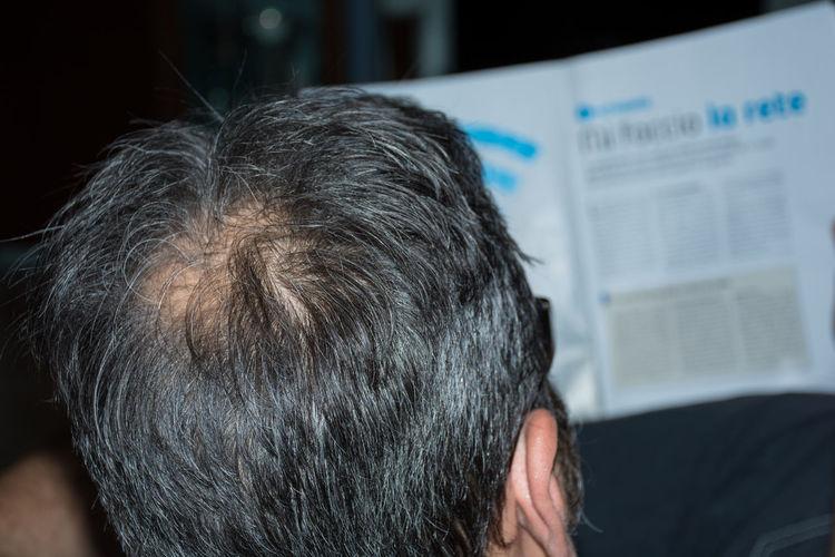 Bald Baldeneysee Baldhead Baldness Men Men At Work  Mensfashion Menstyle Menswear