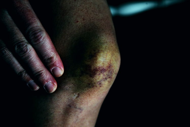 Adult Bruise Close-up Healthcare And Medicine Human Body Part Human Hand Human Leg Human Skin Indoors  One Person People Physical Injury Real People Wound