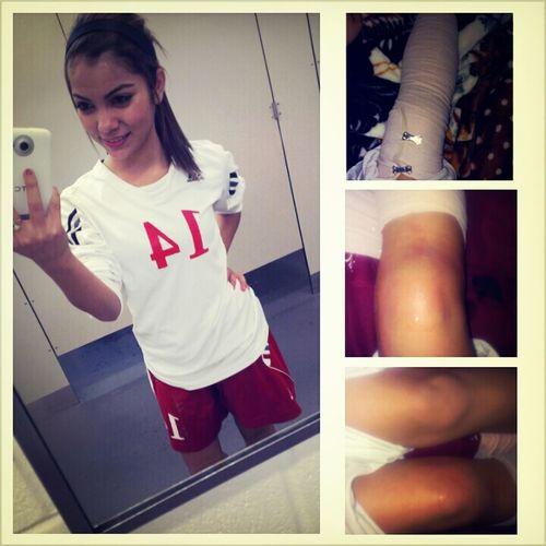 soccer injury