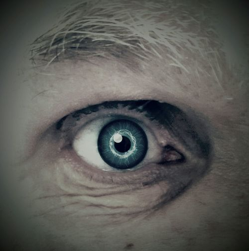Eyes Daddy❤ Glasseye JustoneeyeLost his right eye in an accident at work many years ago