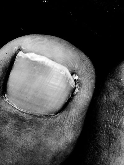 Toesaregross Foot Worn Beaten Tired Manymiles HuaweiP9Photography HuaweiP9 Stilllearning Bestoftheday Fragility