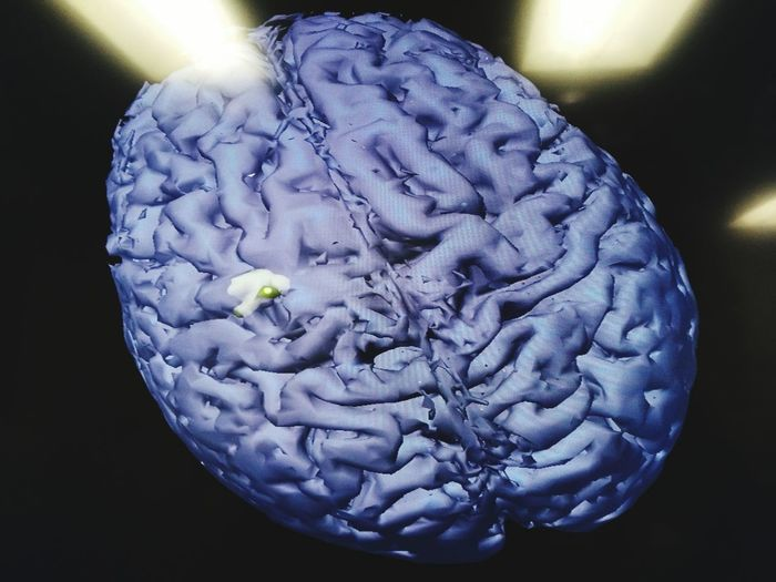 Human brain after cancer treatment Anatomy Brain Neuroscience Neurosurgery Close-up Extreme Close-up Focus On Foreground Freshness No People