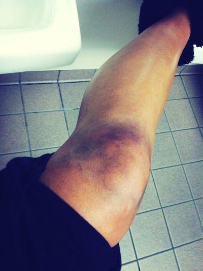 Knee Probz