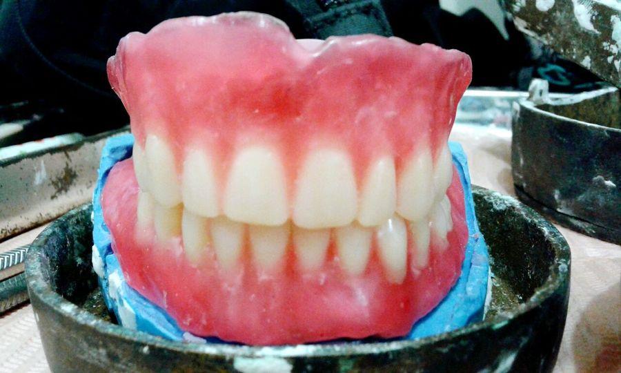 Smile while you have teeth 😀 Smile Dentistry Dentista Dentures Complete Denture Studentist Dental Student Prosthodontics Prosthesis Happy