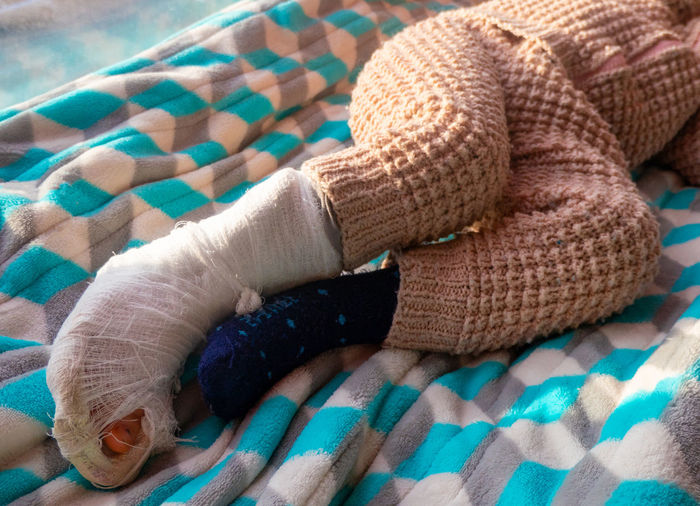 Child with bandage on leg heel fracture. broken right foot, splint of toddler.