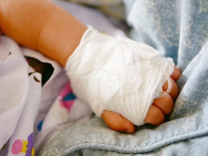 Cropped Hand Of Baby With Physical Injury On Bed