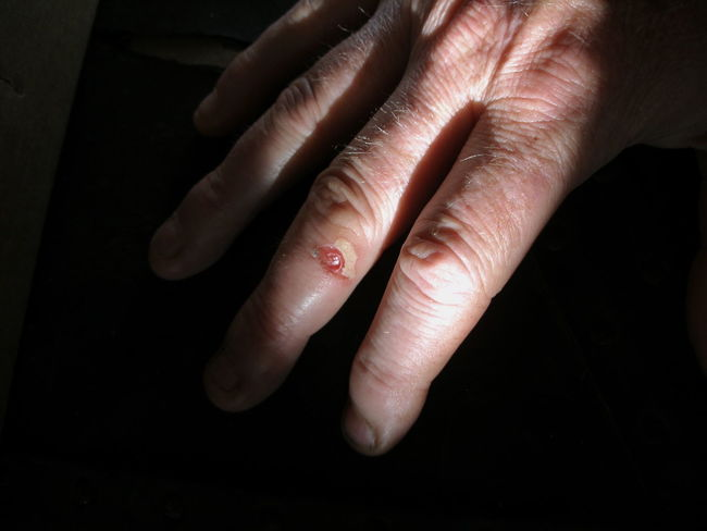 Cut SORE Black Background Blister Close-up Day Human Body Part Human Finger Human Hand Human Skin Indoors  One Person People Real People Women