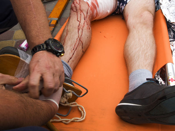 Red Cross staff member puts splint on the man's leg victim of a terrorist attack (reconstruction) Casual Clothing Close-up Day Holding Human Finger Leg Low Section Man Person Puts Red Cross Splint Staff Terrorist Attack Victim