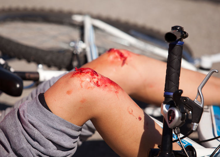 Cycling injuries. Bicycle accident. Bicycle Accident Bicycle Safety Biking Crash Cycling Injuries Cyclist Healthcare Injured Pain Road Bicycle Bike Accident Bike Injuries Blood Cycling Accident Fall Human Leg Human Skin Leg Injury Physical Injury Stage Makeup Traffic Accident Trauma Unrecognizable Person Wound