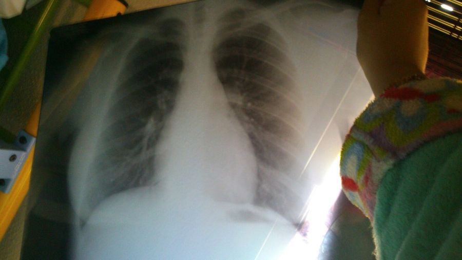 me That's Me Photo Radiografia