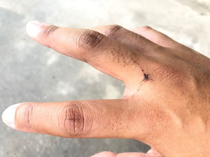 I slap the bloody mosquito with backhand. Death Blood Mosquito Kill EyeEm Selects Human Body Part Human Hand Hand One Person Real People Body Part Finger Close-up Human Finger Focus On Foreground Personal Perspective Unrecognizable Person Human Skin Day Outdoors