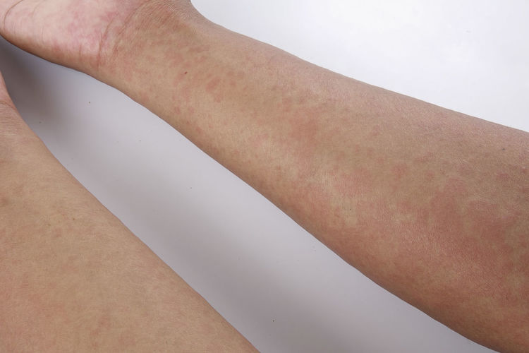 MEDICAL CONCEPTUAL. RASHES OR FOOD ALLERGIC Medicine Body Part Chest Food Allergy Hand Medical Rash Rashes
