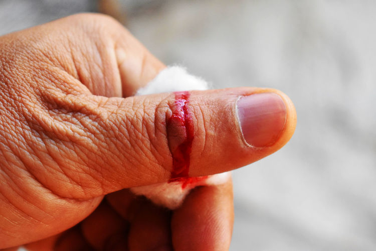 Close-up of cropped man showing bleeding thumb