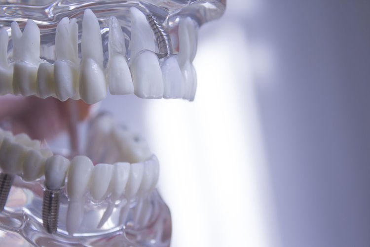 Abundance Close-up Copy Space Dental Equipment Dental Health Dentist Focus On Foreground Food Food And Drink Healthcare And Medicine Hygiene Indoors  Large Group Of Objects No People Science Selective Focus Temptation Unhealthy Eating White Color