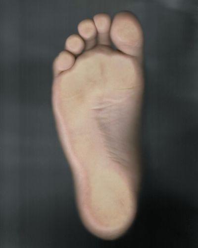 Gray Background Close-up Human Foot Bandage Wrist Human Leg Joint - Body Part Cramp Human Toe Sole Of Foot Adhesive Bandage Anatomy Feet