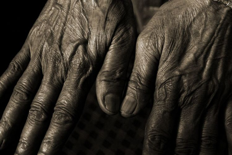 Close-up of senior person showing wrinkles on hand