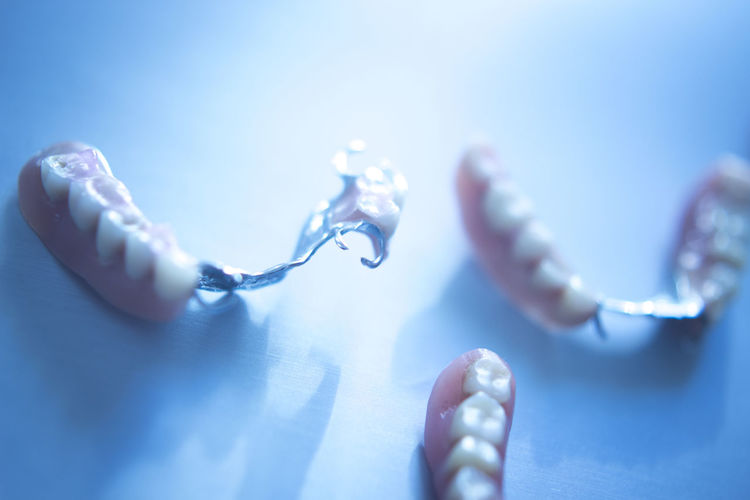 High angle view of dentures on table