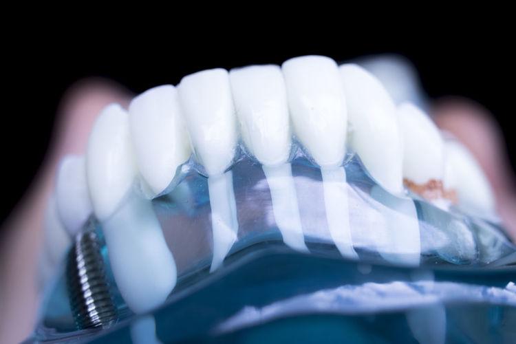 Close-up of dentures over black background