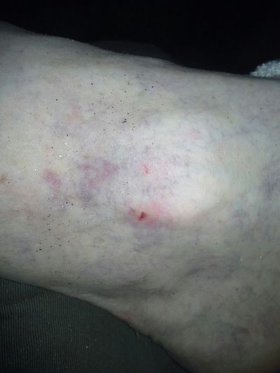 Snakebites Ankle This Is Me !!! David Tupponce Tupponce Photography Altavista,VA English Park River Summertime Selfadministeredfirstaid