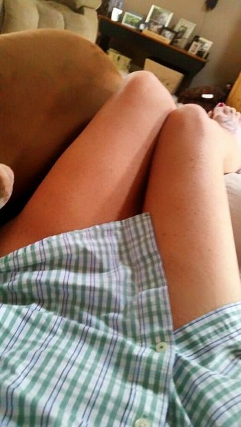 Just a button down shirt will be my attire for the next month.. And a lot of doing nothing. Did I mention neck surgery sucks? 😕 Bored JustMe Legs Mylegs Sexy Legs Recovering From Surgery Unhappy Makemesmile NeedALaugh Bare Feet