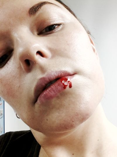 Her lips red as blood. Yep my lip is broken! Lips Blood Red Hurting