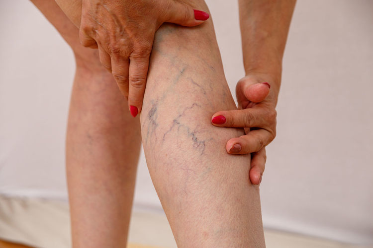 Midsection of woman touching veins of leg