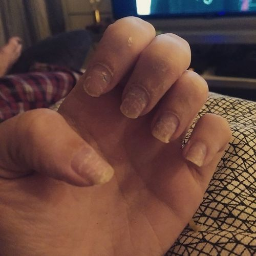 Postnaildepression Ruinednails Peeling Needamanicure