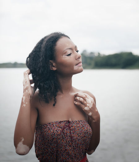 Woman suffering from vitiligo standing against lake