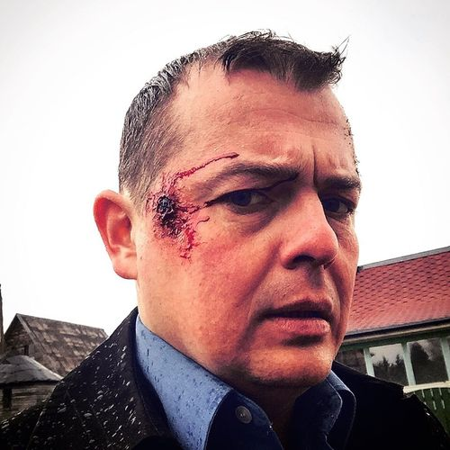 Shot Wounded Acting... Actor