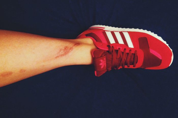 Ops. Bit Hurt Legs Taking Photos